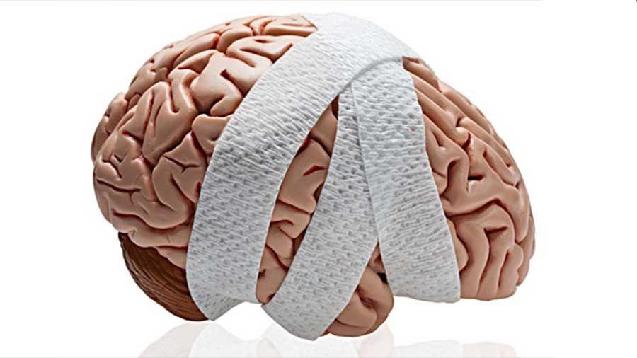 Los Mejores Abogados en Español de Lesiones Cerebrales Para Mayor Compensación en Chula Vista California